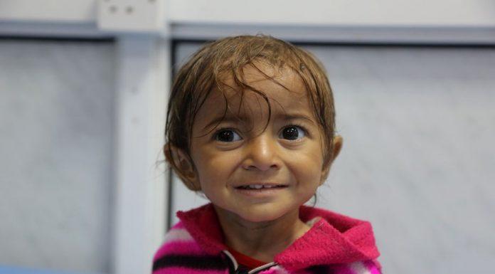 A malnourished Yemeni child receives treatment