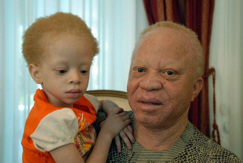 mali-albino-musician